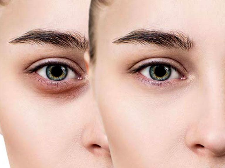 علت سیاهی دور چشم