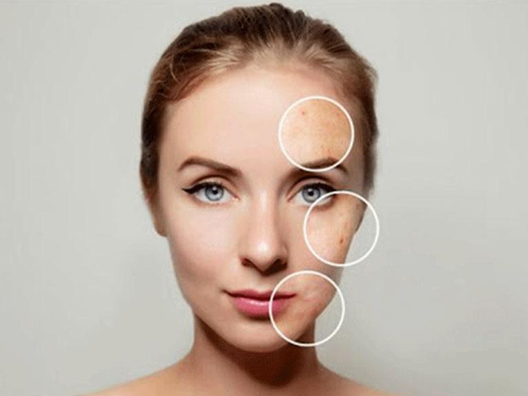 انواع لک پوستی