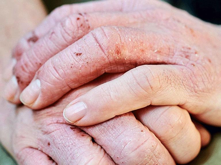 درمان اگزمای دست