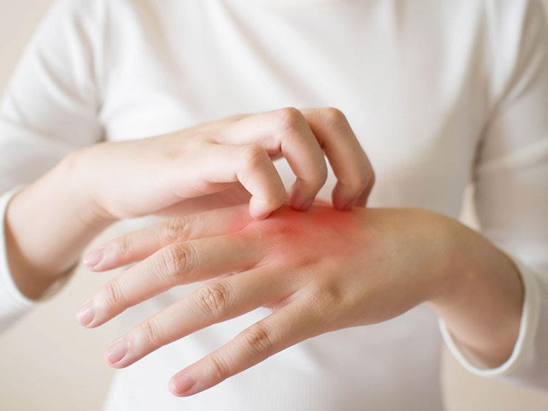 درمان خارش پوست دست