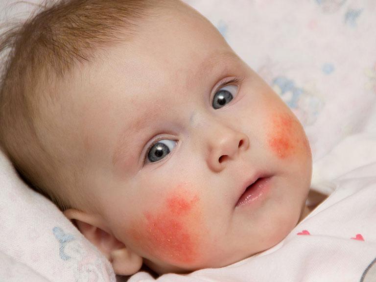 خارش صورت نوزادان