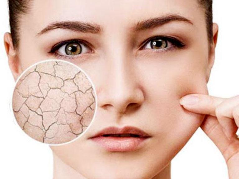 علائم خشکی پوست