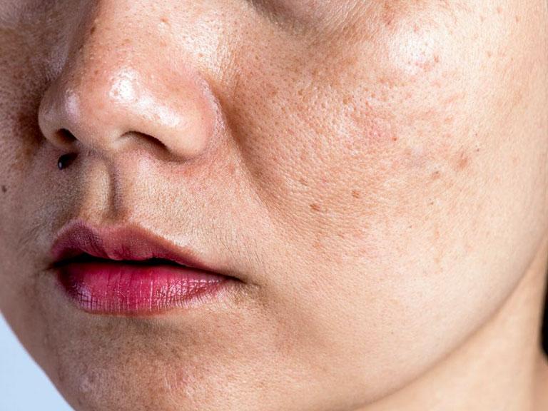 منافذ باز پوستی چیست